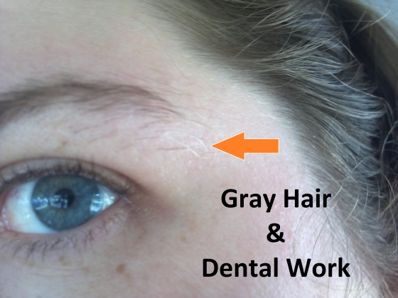 Gray Hair & Dental Work